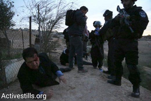 [Pilt: Ayman-wounded-w-cops-lighter-e1484761473112.jpeg]